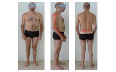 L'utilizzo della riabilitazione posturale come prevenzione dell'artropatia emofilica
