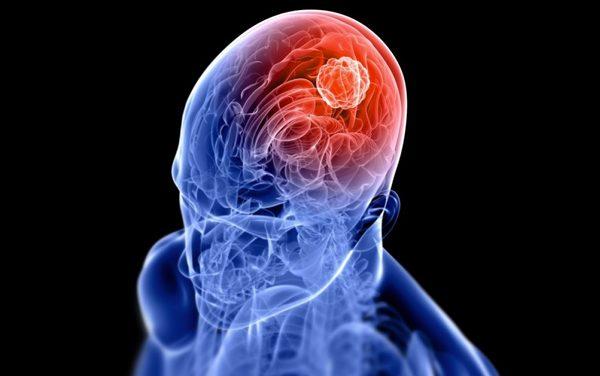Emorragie Cerebrali – EMOREC