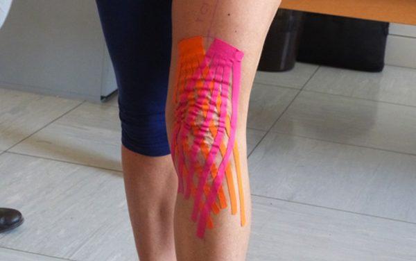 Utilizzo del taping neuromuscolare (kinesiotape) come supporto alla fisioterapia