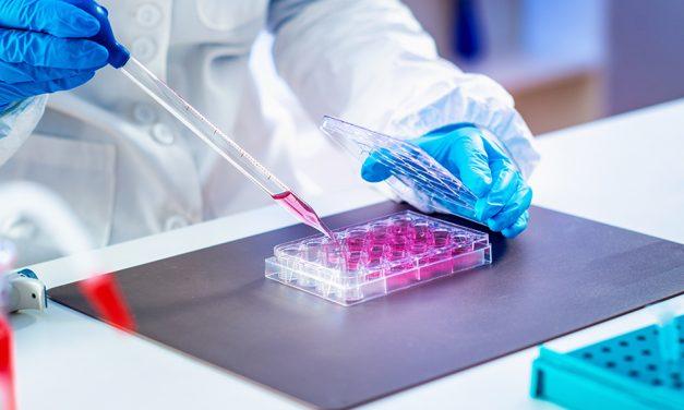 Survey: l'induzione di immunotolleranza ai tempi di emicizumab